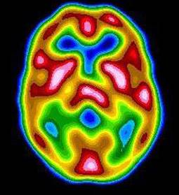 A Brain Scan