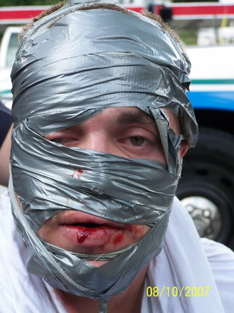 This man's head exploded, and had to be put back together with duct tape.